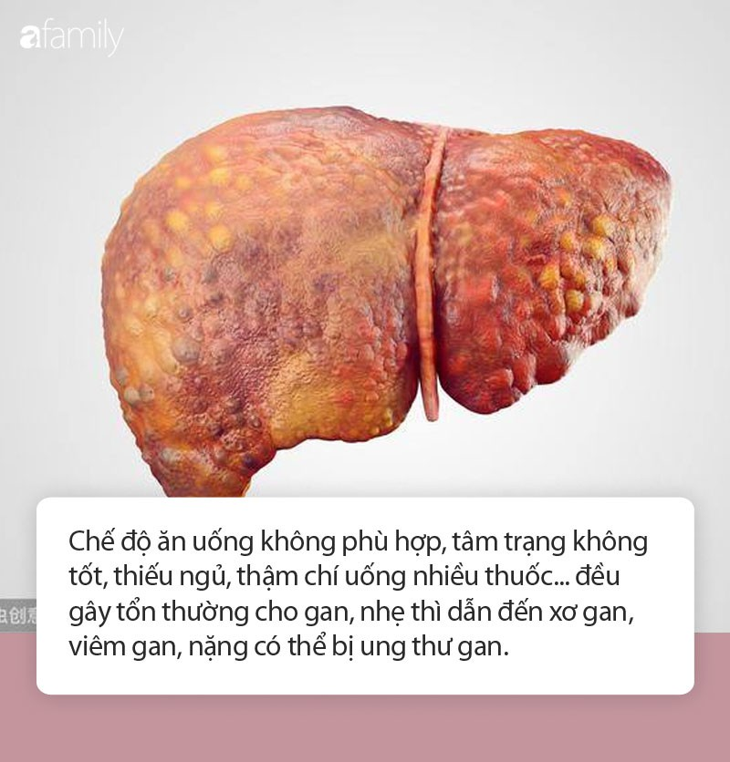 ung-thu-gan