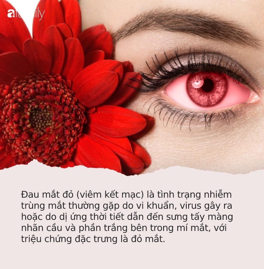 Đau mắt đỏ: Căn bệnh dễ lây mạnh, cần cảnh giác cao trong mùa Hè này - Ảnh 1.