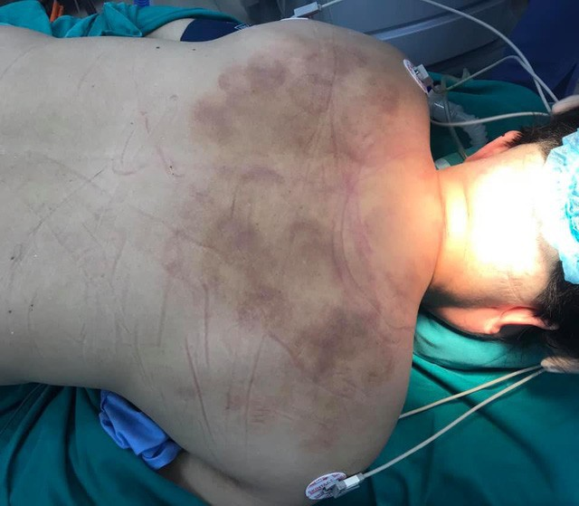 Hình ảnh cổ gáy bệnh nhân bầm tím do đi đấm bóp - xoa nắn được bác sĩ chụp trước khi ca phẫu thuật lúc nửa đêm tiến hành. Ảnh: BSCC