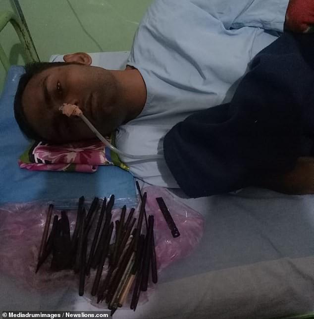 """Bác sĩ choáng váng khi lấy ra 33 vật thể từ bụng nam bệnh nhân mắc hội chứng """" thích ăn cả thế giới"""" - Ảnh 2."""
