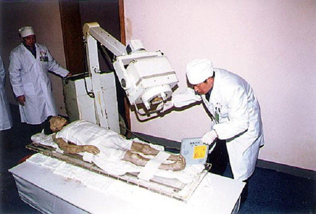 xac-uop-5