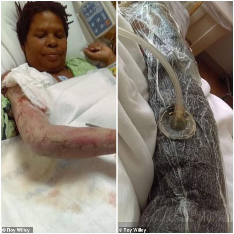 Người phụ nữ bị nhiễm vi khuẩn ăn thịt người sau khi đi công viên nước - Ảnh 1.