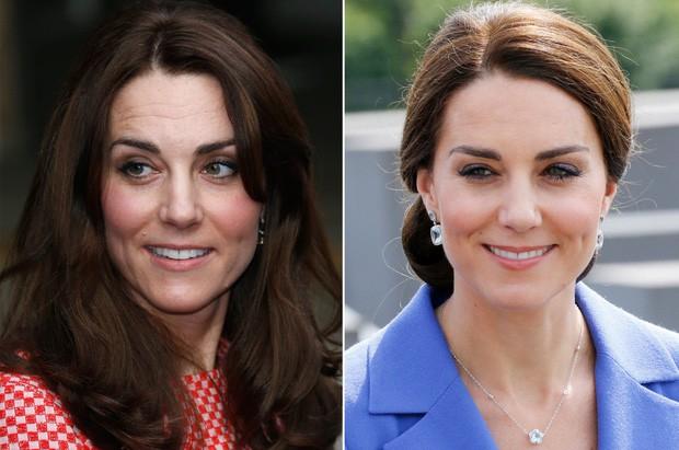 Da nhăn nheo bỗng căng mịn, Công nương Kate bị thẩm mỹ viện rêu rao tiêm botox khiến Hoàng gia Anh phải dẹp loạn - Ảnh 1.