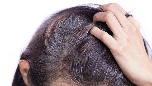 Hà thủ ô trị tóc bạc sớm có phải chỉ là tin đồn thổi phồng - Ảnh 1.