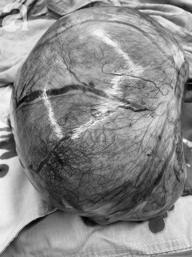 Cô gái mới 28 tuổi phải cắt tử cung, mất khả năng làm mẹ vì khối u tấn công 3 năm nhưng không khám sớm để kịp thời điều trị - Ảnh 2.