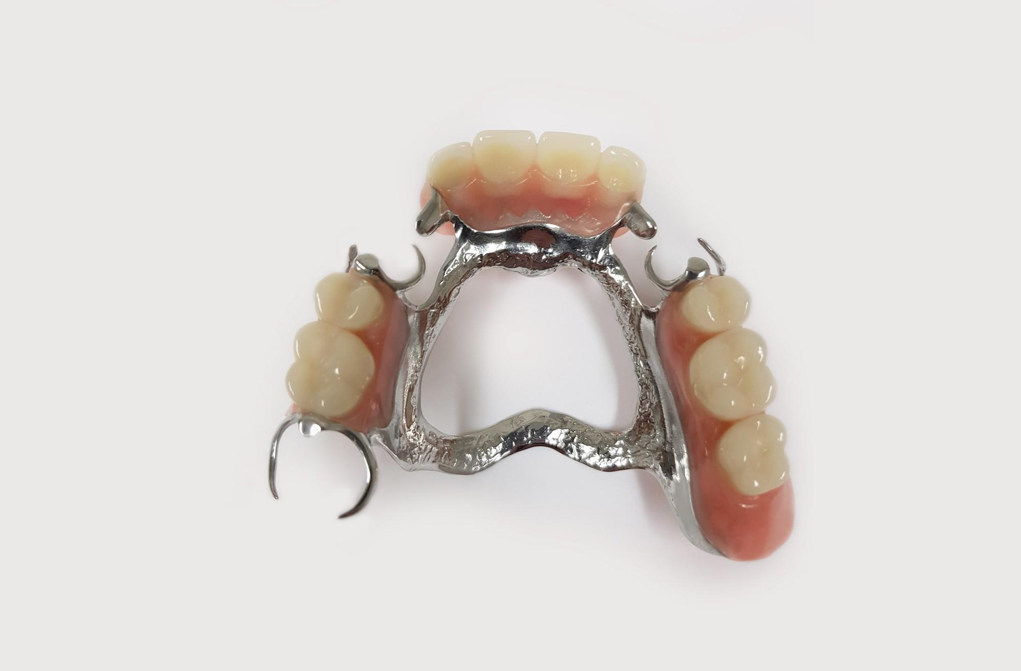metal-frame-partial-dentures