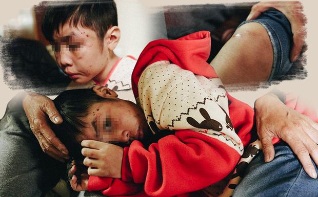 Nghẹn đắng những đứa trẻ bị bố mẹ ruột, mẹ kế bạo hành dã man gây phẫn nộ dư luận - Ảnh 4.