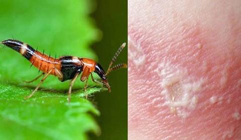 """Dại dột lấy nọc kiến ba khoang chữa nấm da, thanh niên hoại tử """"vùng kín"""" - Ảnh 2."""