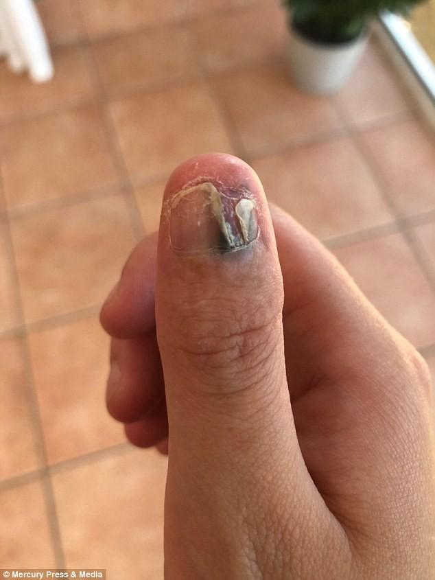Cô gái 21 tuổi bị loại ung thư hiếm gặp, phải cắt bỏ ngón tay cái bởi sở thích tai hại chẳng ai ngờ  - Ảnh 3.