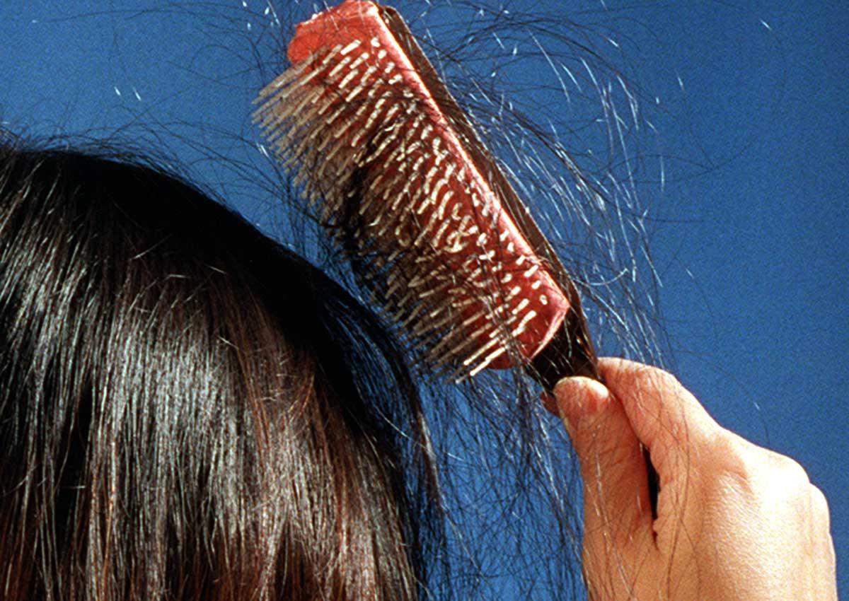 hairloss_st