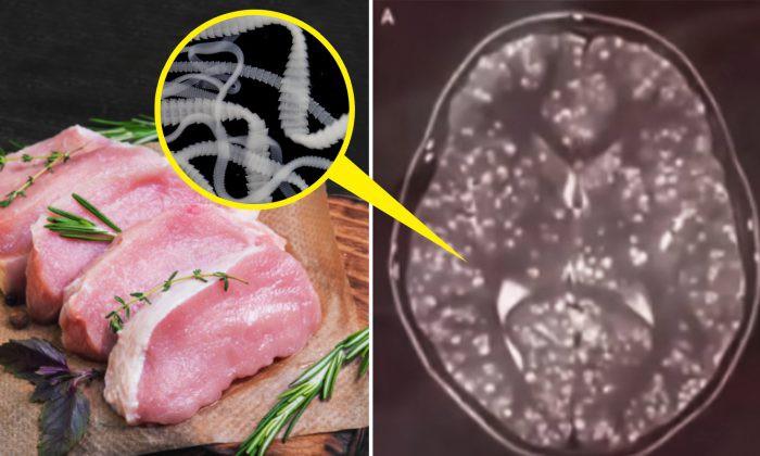 Thanh niên 18 tuổi có sán làm tổ trong não sau khi ăn một món cả triệu người thích  - Ảnh 1.