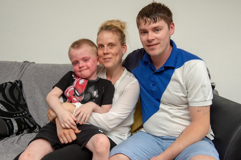 """Cậu bé 5 tuổi nhập viện """"như xác ướp"""" vì một chứng bệnh lạ, có nguy cơ tử vong cao - Ảnh 3."""
