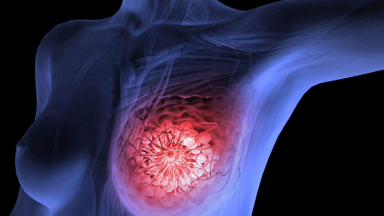 Loại rau chống 8 bệnh ung thư bao gồm ung thư vú và dạ dày, chợ Việt vừa sẵn lại rẻ bèo - Ảnh 2.