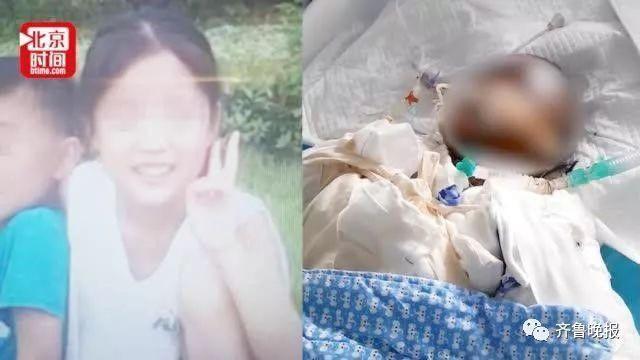 """Bé gái 14 tuổi bị bỏng nặng do học làm bỏng ngô trên mạng đã qua đời, người nhà phát hiện con bắt chước """"thánh nữ văn phòng"""" Tiểu Dã - Ảnh 1."""
