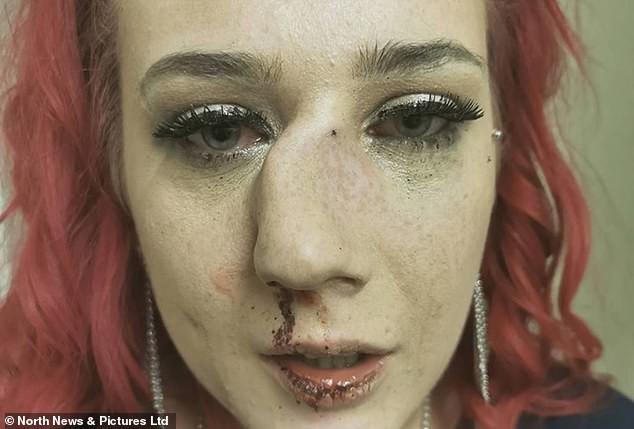 Đang đi trên đường, người đẹp bị kẻ lạ mặt buông lời trêu đùa rồi lao vào hành hung đến nỗi mũi bị gãy, lệch hẳn một bên - Ảnh 1.