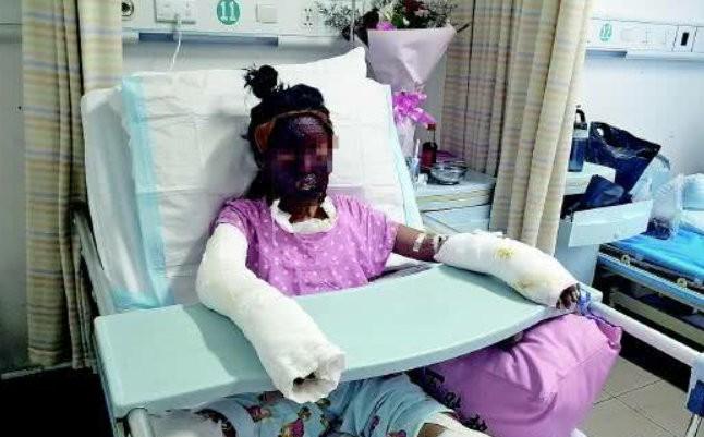 2 bé gái bắt chước cách nổ bỏng ngô trên kênh Youtube nổi tiếng: Người bỏng nặng, người tử vong - Ảnh 1.