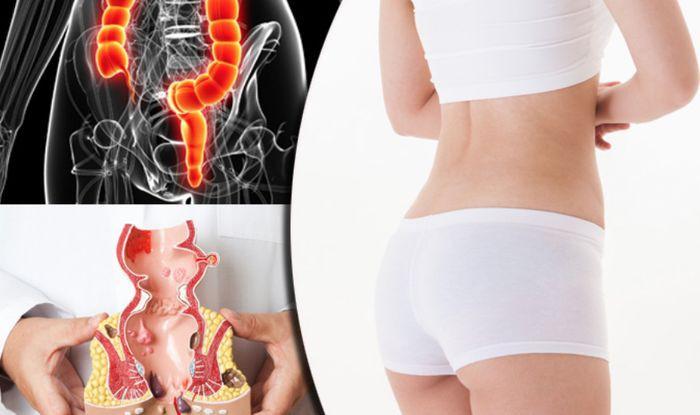 Đây là loại virus lây nhiễm qua đường tình dục có thể gây ung thư miệng, hậu môn, dương vật và cổ tử cung