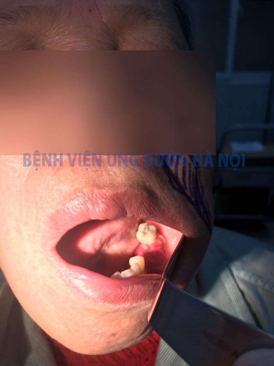 Tưởng chỉ bị viêm họng, sâu răng thông thường, người phụ nữ đi khám mới biết mình bị ung thư lợi hàm hiếm gặp - Ảnh 1.