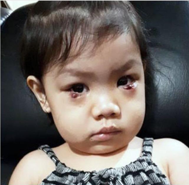 """Dụi mắt bằng tay bẩn, bé gái 2 tuổi đã phải phẫu thuật mắt khẩn cấp để loại bỏ những """"vết dơ"""" mưng mủ trong mắt - Ảnh 2."""