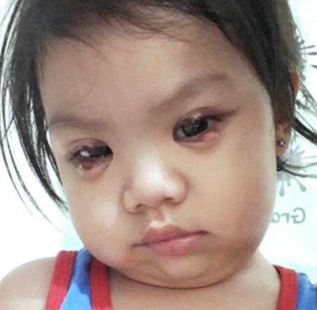 """Dụi mắt bằng tay bẩn, bé gái 2 tuổi đã phải phẫu thuật mắt khẩn cấp để loại bỏ những """"vết dơ"""" mưng mủ trong mắt - Ảnh 1."""