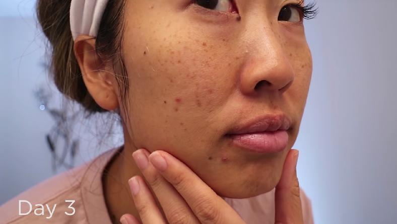 Tiết kiệm chi phí cho Tết, cô nàng dành 7 ngày massager với lô hội để dưỡng ẩm, trị mụn và kết quả nhận được ngoài sức mong đợi - Ảnh 9.