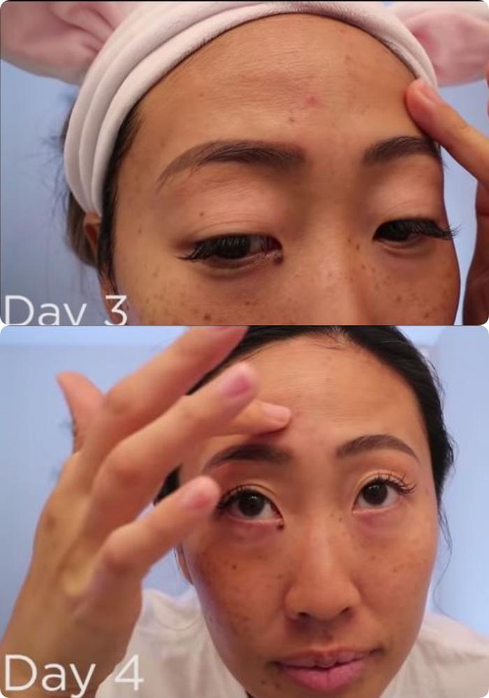 Tiết kiệm chi phí cho Tết, cô nàng dành 7 ngày massager với lô hội để dưỡng ẩm, trị mụn và kết quả nhận được ngoài sức mong đợi - Ảnh 10.