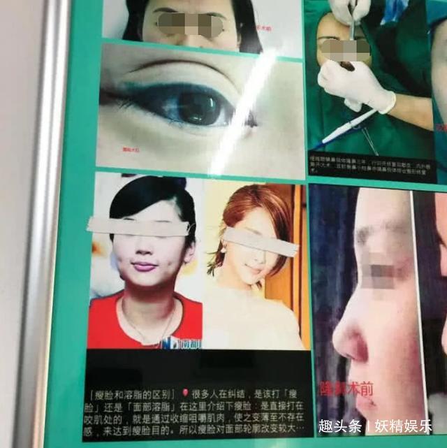 Dương Tử bất ngờ xuất hiện trong ảnh quảng cáo của bệnh viện thẩm mĩ và phản ứng của netizen: thẩm mỹ chính là thẩm mỹ - Ảnh 3.