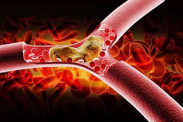 Cứ mắc 1 trong 4 dấu hiệu sau thì coi chừng lipid trong máu đang tăng vọt, không vào viện ngay sẽ nguy hiểm đến tính mạng - Ảnh 1.