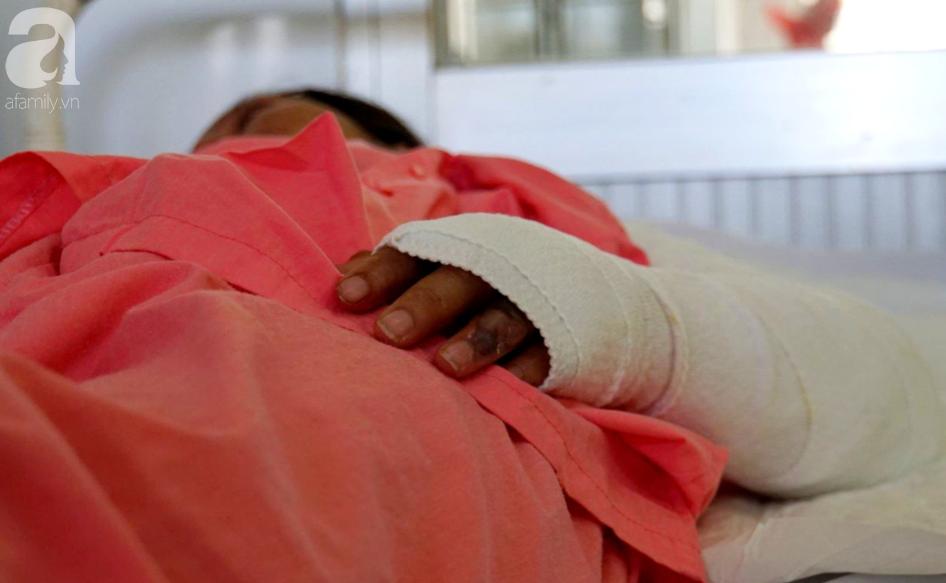 Thương tâm 5 sản phụ bị bỏng nặng, có người phải cắt bỏ cả bàn tay vì nằm than sau sinh - Ảnh 3.