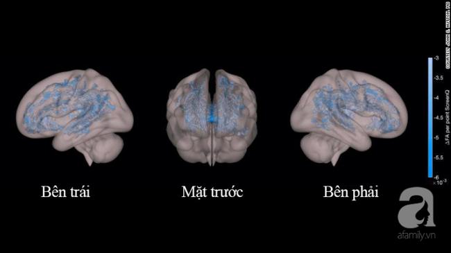 Nhìn kết quả MRIs não bộ của hai đứa trẻ: thường xuyên đọc sách và thường xuyên xem điện thoại, cha mẹ sẽ biết mình nên làm gì với con - Ảnh 3.