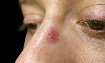 """Những """"tín hiệu khẩn"""" từ nốt ruồi cho thấy bạn đang mắc trọng bệnh và cần phải đi khám sớm - Ảnh 2."""