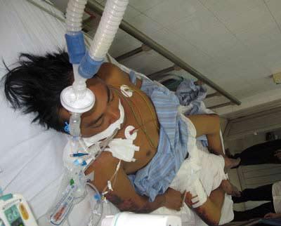 Bệnh nhân đầu tiên tử vong do nhiễm liên cầu lợn