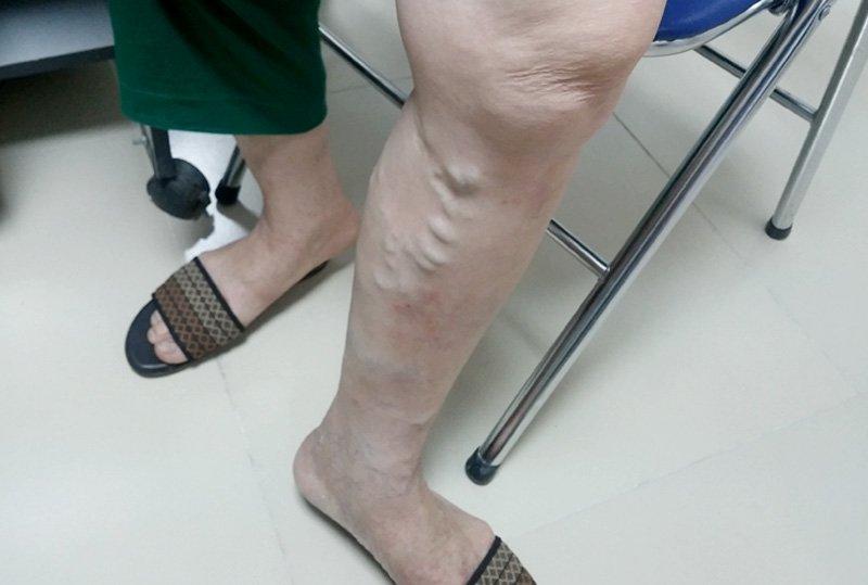 giãn tĩnh  mạch chân, chân nổi mạch máu, chân nổi gan