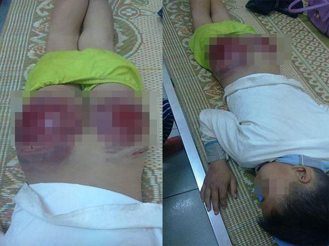 Bố đánh con tứa máu ở Thái Nguyên: Tôi cũng thương lắm, nhưng... - Ảnh 1.