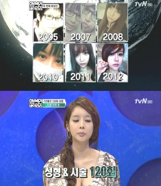 Cô gái Hàn Quốc phẫu thuật thẩm mỹ... 120 lần   1
