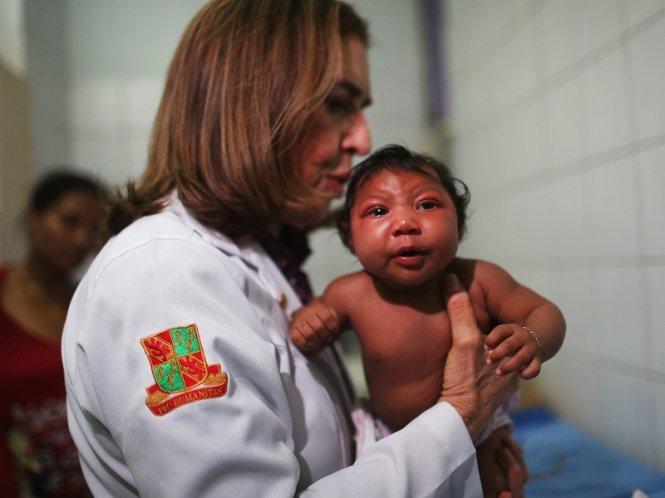 Một nhóm bác sĩ Argentina cho rằng dịch teo não bất thường ở trẻ sơ sinh tại Brazil không phải do virút Zika mà do một loại hóa chất diệt ấu trùng có trong nguồn nước sinh hoạt - Ảnh: Techtimes