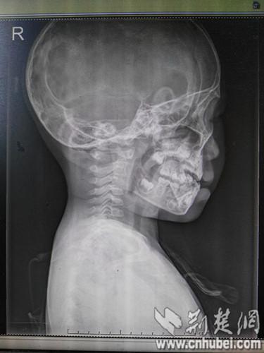 Ôm điện thoại và Ipad, bé 3 tuổi bị lệch cổ, thoái hóa đốt sống - Ảnh 2.