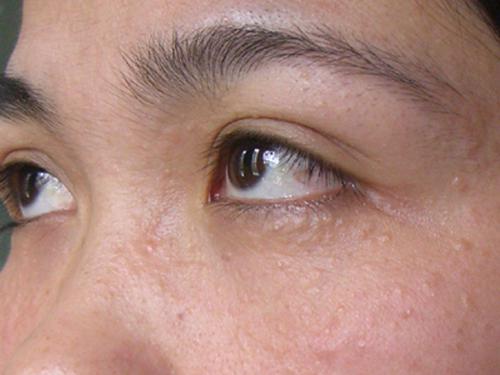 Xấu đi vì điều trị mụn thịt quanh mắt
