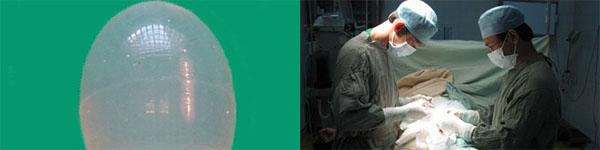 Ca phẫu thuật thẩm mỹ tinh hoàn đầu tiên 2