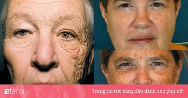 Đây chính là minh chứng cho thấy hậu quả kinh hoàng của làn da nếu bạn không bôi kem chống nắng mỗi ngày