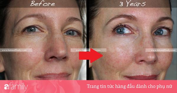 Đắn đo trước hiệu quả chống già của retinol? Minh chứng người phụ nữ sau 3 năm kiên trì với làn da như photoshop sẽ khiến bạn thay đổi