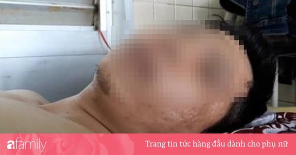 Bị gãy đốt sống ngực nhưng bác sĩ lại... khoan cẳng chân: Bệnh viện lên tiếng 'khoan nhầm nhưng vết thương sẽ tự lành'