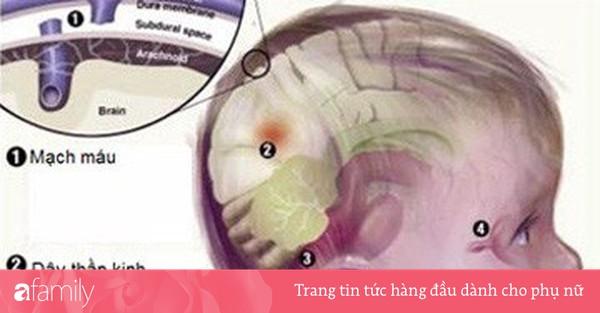 Cẩn thận hội chứng rung lắc ở trẻ
