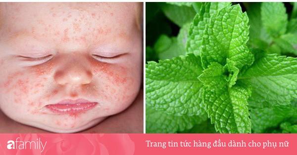 Chữa sốt phát ban ở trẻ: 2 bài thuốc dân gian cực tốt, khỏi bệnh sau vài ngày nhưng ít người biết