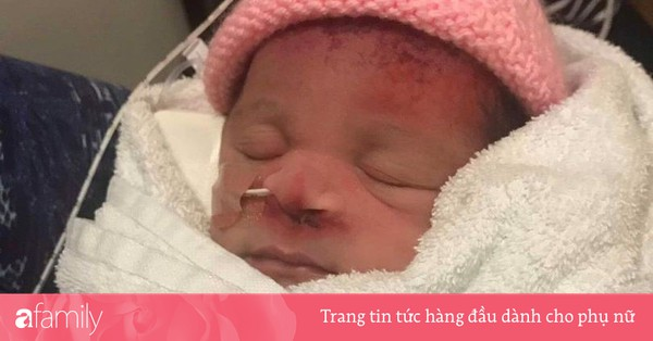 Bác sĩ ''quá tay'' khi mổ bắt thai, em bé phải chịu di chứng trên mặt suốt đời