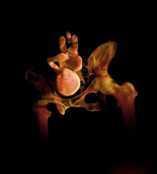 Tuần thai thứ 27: Bé đang tập thở 1