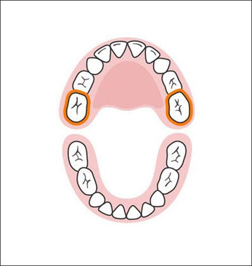 Thứ tự mọc răng sữa của bé mẹ cần biết 10