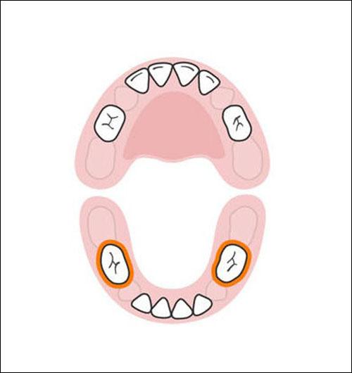 Thứ tự mọc răng sữa của bé mẹ cần biết 6