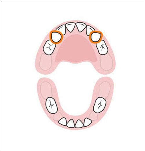 Thứ tự mọc răng sữa của bé mẹ cần biết 7
