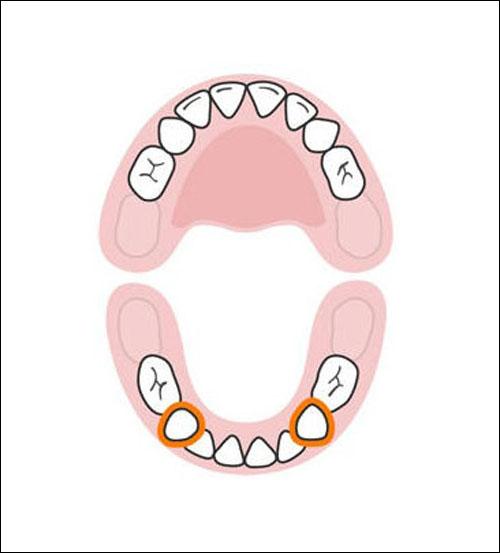 Thứ tự mọc răng sữa của bé mẹ cần biết 8